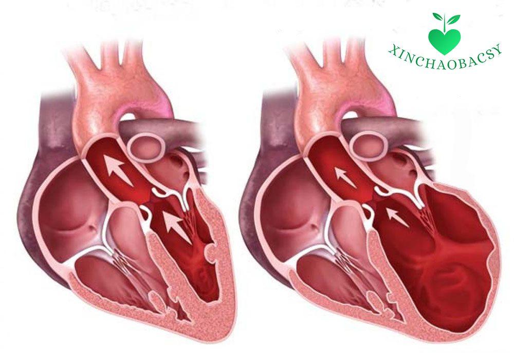 Suy tim trái – Bệnh tim nguy hiểm bạn cần hiểu rõ